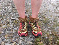 Laura's shoes and socks were coated with burnet burrs after the match